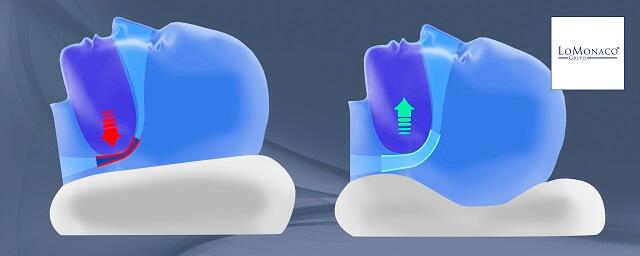 Paradas respiratorias durante el sueño: Apnea
