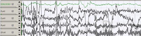 gráfico-1-4-ondas-cerebrales-del-estado-de-vigilia-y-movimiento-ocular