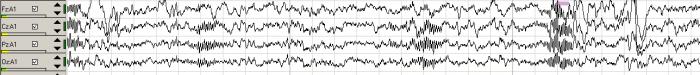 gráfico-2-ondas-cerebrales-fase-2-del-sueño-y-husos-del-sueño