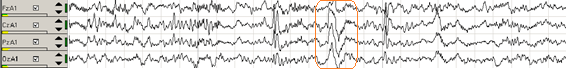 gráfico-3-ondas-cerebrales-fase-2-del-sueño-con-complejo-K