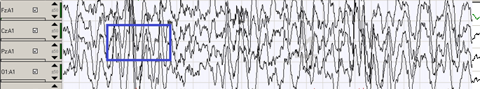 gráfico-4-ondas-cerebrales-fase-de-sueño-de-ondas-lentas